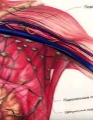 Гипертония: повышенное давление - причина и лечение. Врач Шишова.
