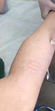 Варикоз: тела, конечностей. Причины, профилактика, лечение варикоза. Врач Шишова.